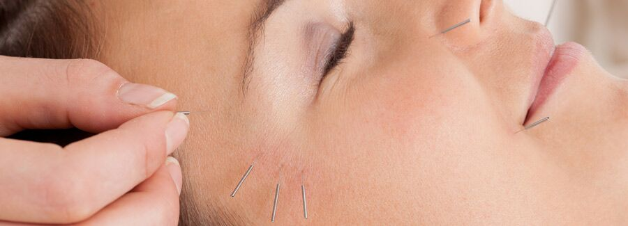 Professional care and dry needling service provided for PT patients in Norcross Peachtree Corners GA